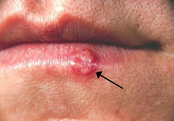 фото герпеса во рту